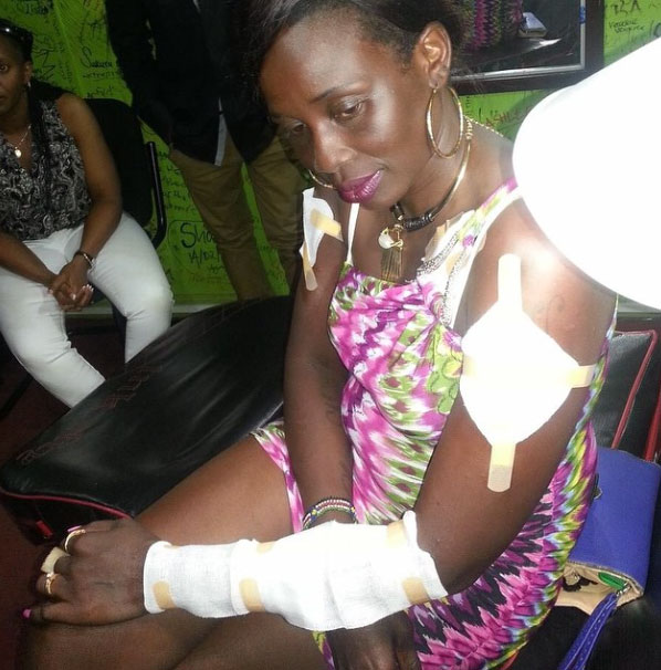 Mary Boyoi bandaged during a recent music video set