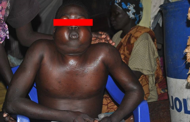 """Shocking: Thief bewitched to """"faceless-ness"""" in Torit [PHOTOS]"""