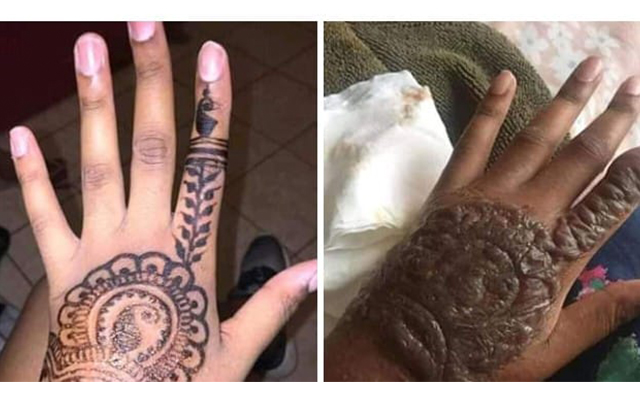 Doctors warn bleachers to stay away from Henna